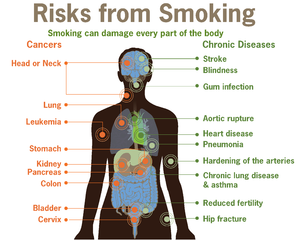 300px-Risks_form_smoking-smoking_can_damage_every_part_of_the_body